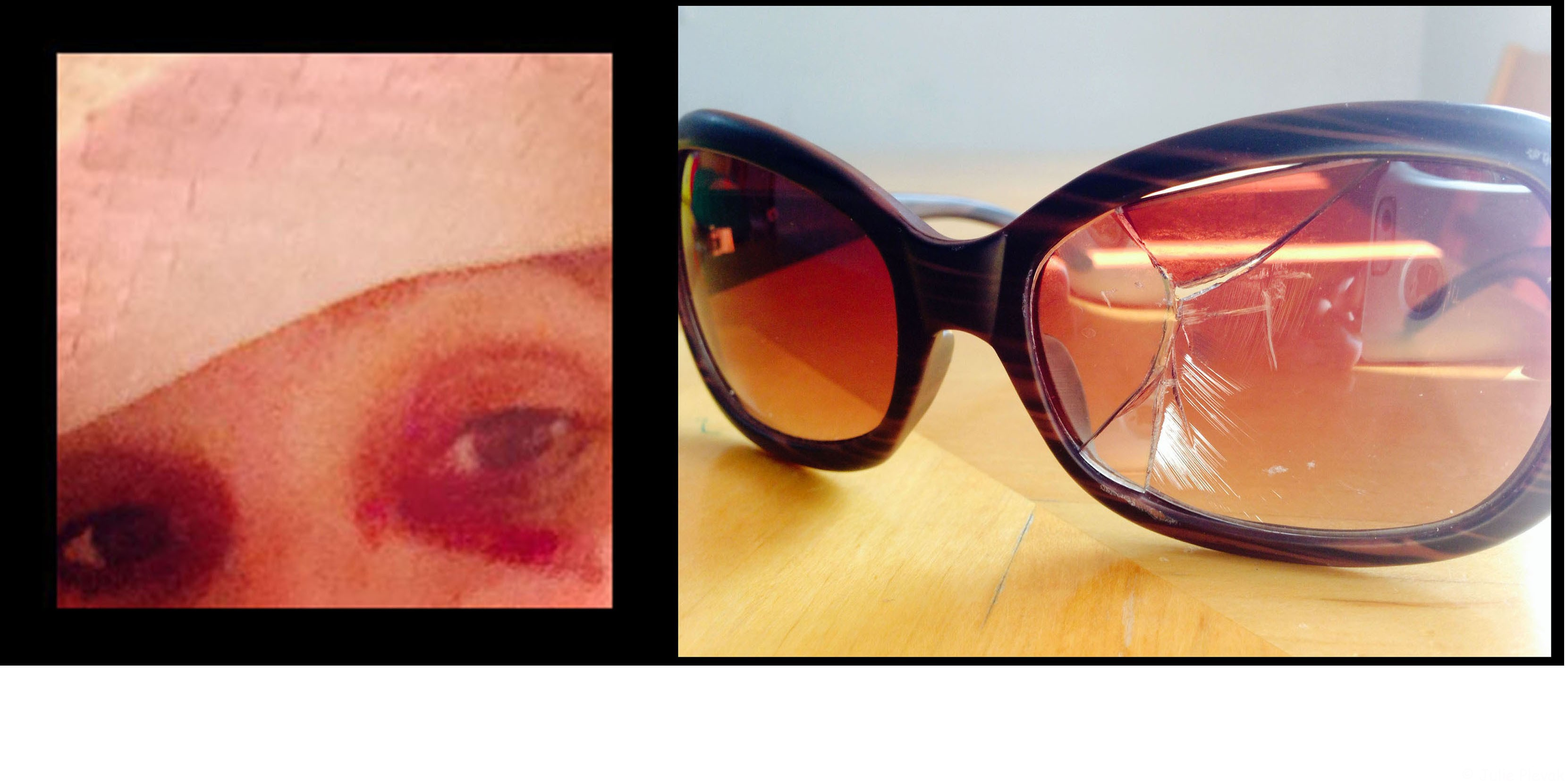 Broken glasses,black eye, Sedona, AZ, hike, hiking